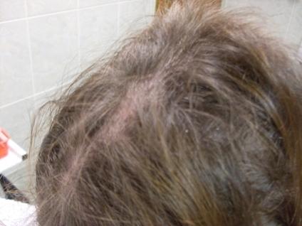 Mezoterapia – stále obľúbená metóda