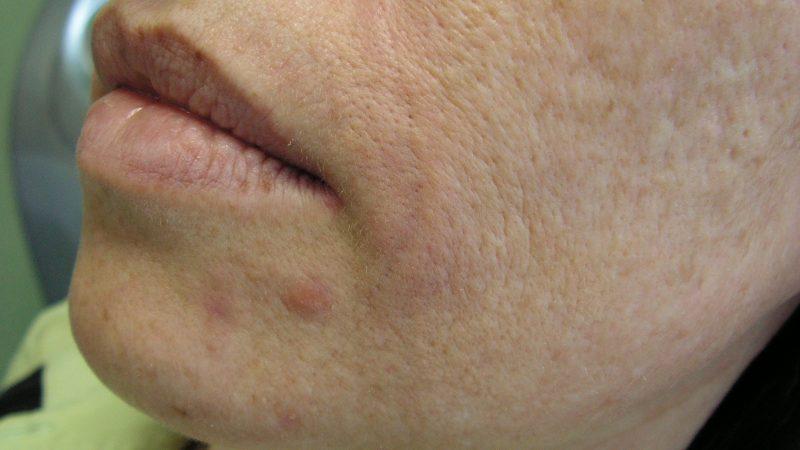 Omladenie strednej časti tváre