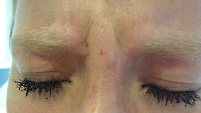 Ošetrenie vrások v hornej časti tváre