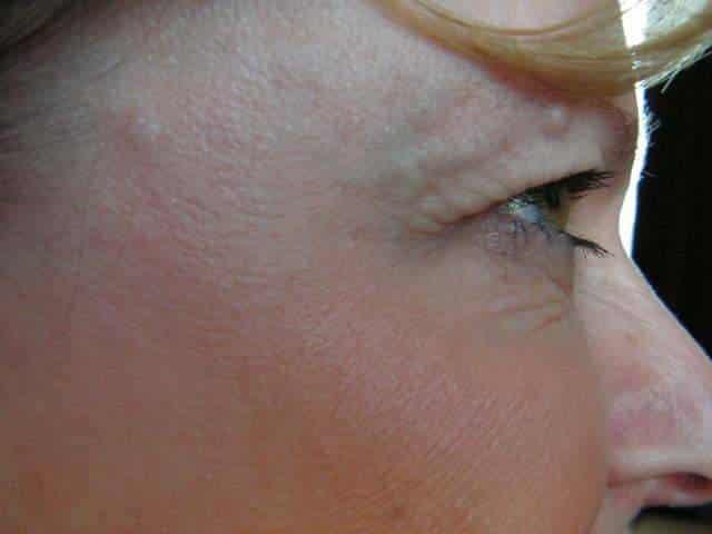 Botulotoxín okolo očí po