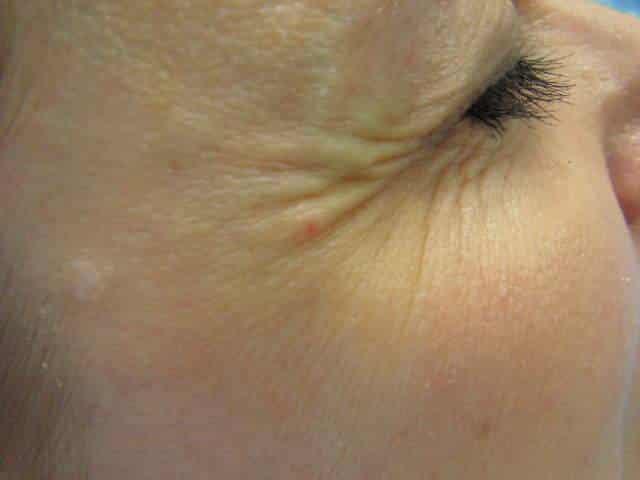 Botulotoxín okolo očí pred